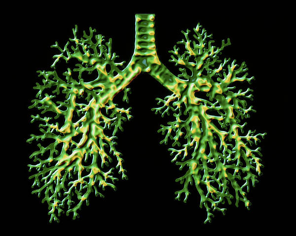 Bronchus Photograph - Lungs by Alfred Pasieka/science Photo Library