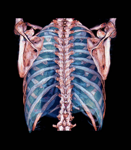 False Ribs Wall Art - Photograph - Lungs And Thorax Bones by Zephyr/science Photo Library