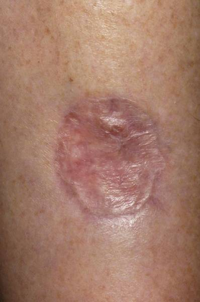 Wall Art - Photograph - Melanoma Excision Wound by Dr P. Marazzi/science Photo Library