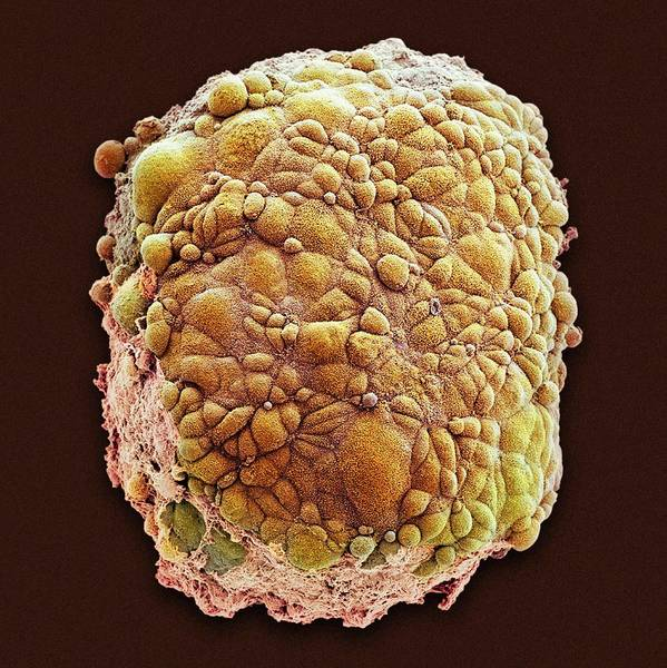 Cancer Wall Art - Photograph - Mesothelioma Spheroid by National Cancer Institute/science Photo Library