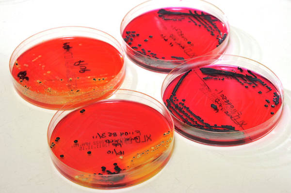 English Culture Photograph - Microbiology Analysis by Public Health England
