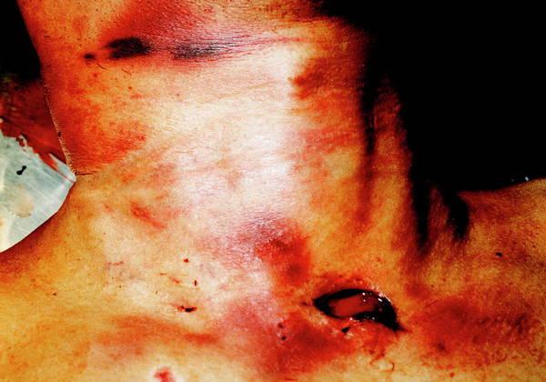 Morgue Photograph - Murder Victim by Mauro Fermariello/science Photo Library
