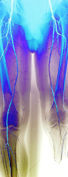 Wall Art - Photograph - Narrowed Leg Arteries by Zephyr/science Photo Library