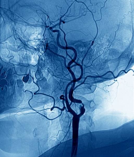 Wall Art - Photograph - Narrowed Neck Artery by Zephyr/science Photo Library