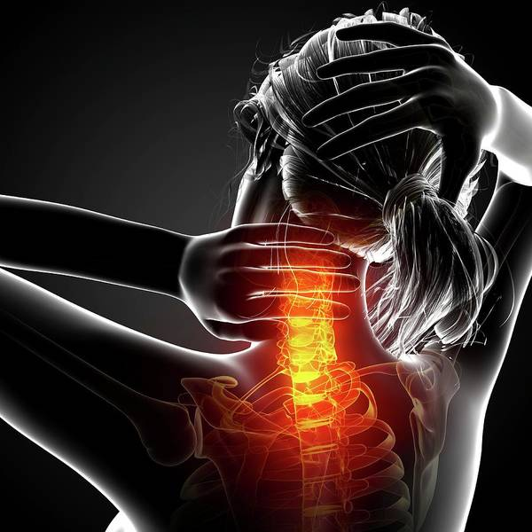 Head And Shoulders Photograph - Neck Pain by Pixologicstudio/science Photo Library