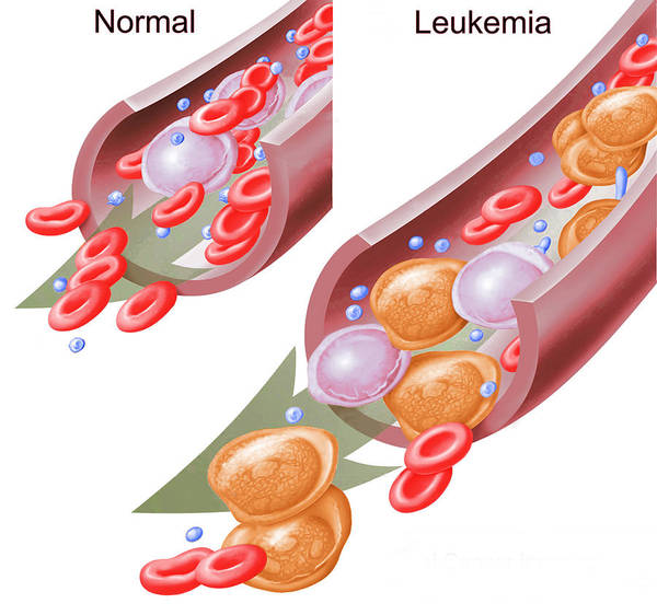 Wall Art - Photograph - Normal Blood Cells And Leukemia by Science Source