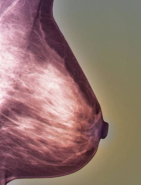Radiological Photograph - Normal Mammogram by Zephyr/science Photo Library