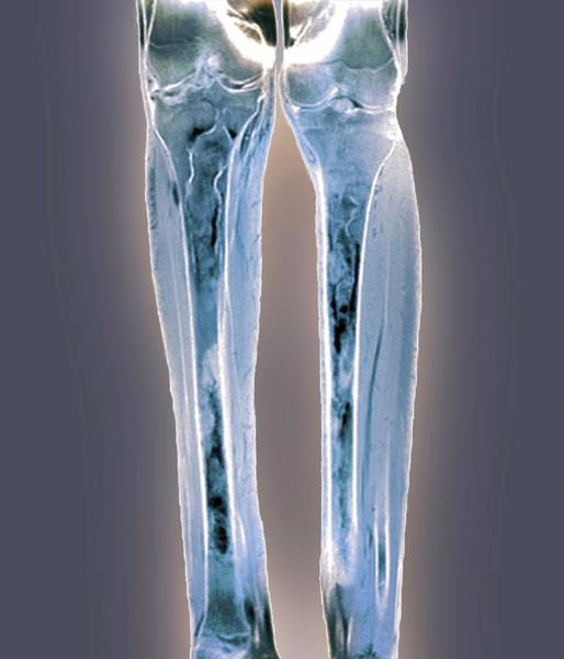 Wall Art - Photograph - Osteomyelitis In Lower Legs by Zephyr/science Photo Library