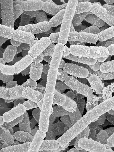 Anaerobe Wall Art - Photograph - Paenibacillus Amylolyticus by Dennis Kunkel Microscopy/science Photo Library