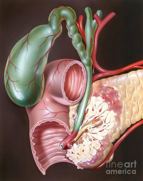 Common Bile Duct Photograph - Pancreatic Cancer, Artwork by John Bavosi