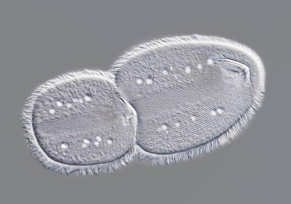 Vacuole Photograph - Parasitic Protozoan by Gerd Guenther/science Photo Library