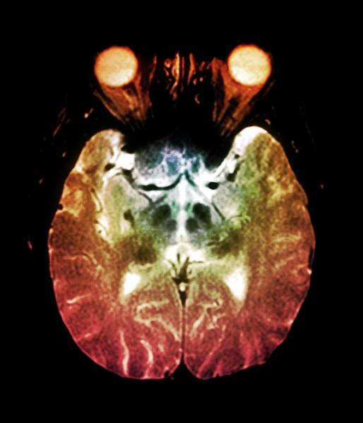 Resonance Wall Art - Photograph - Parkinson's Disease Brain by Zephyr/science Photo Library