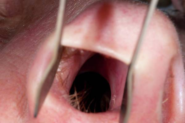 Wall Art - Photograph - Perforated Nasal Septum by Dr P. Marazzi/science Photo Library