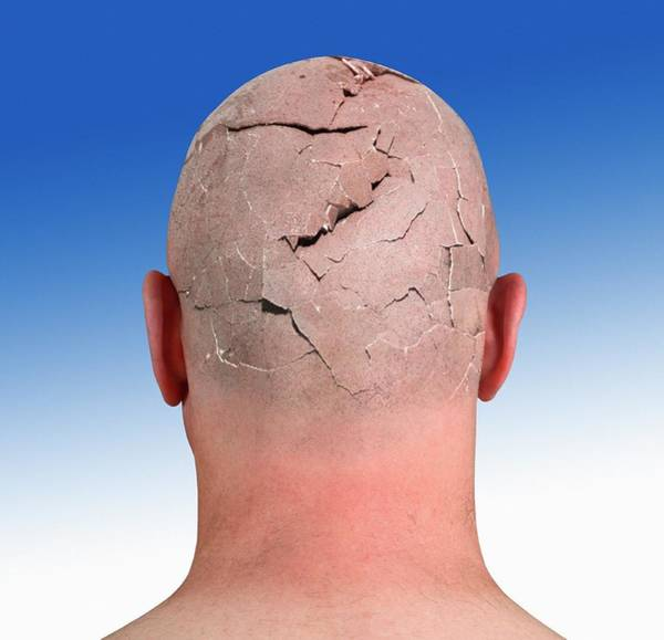 Wall Art - Photograph - Person With Cracked Head by Victor De Schwanberg/science Photo Library