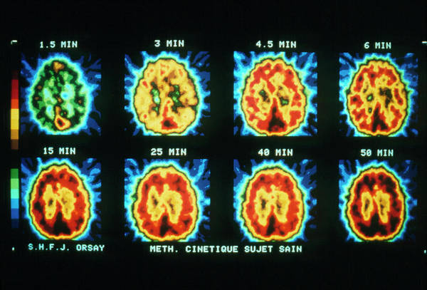 Pet Scans Showing Protein Synthesis In The Brain Art Print