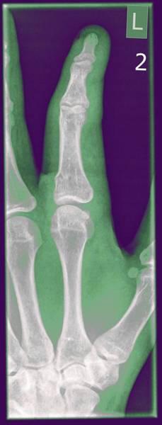 Hand Anatomy Wall Art - Photograph - Phalanges Bones X-ray by Photostock-israel