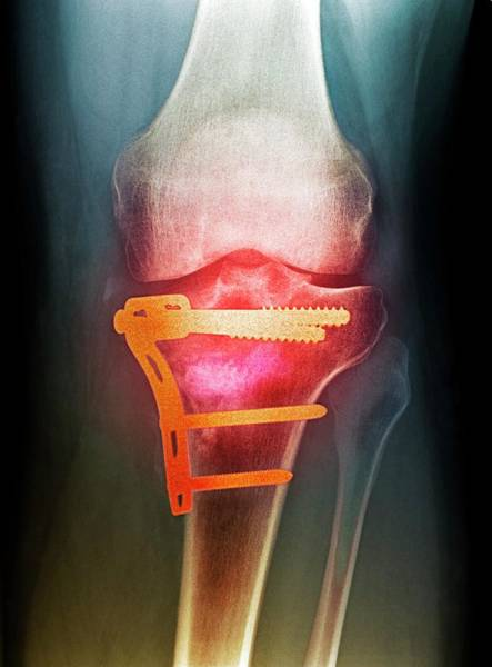 Wall Art - Photograph - Pinned Broken Knee by Science Photo Library