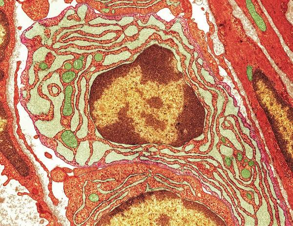 Wall Art - Photograph - Plasma Cell by Medimage/science Photo Library