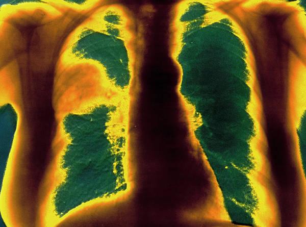 Pneumonia Art Print