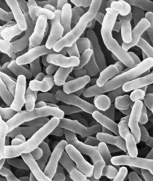 Anaerobe Wall Art - Photograph - Propionibacterium Acidipropionici by Dennis Kunkel Microscopy/science Photo Library