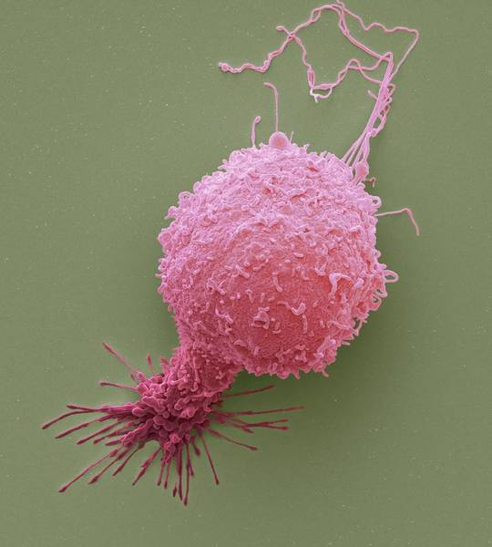 Condition Wall Art - Photograph - Prostate Cancer Cell by Steve Gschmeissner