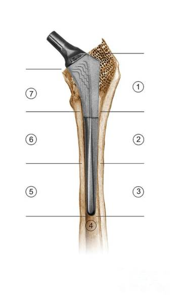 Gruen Photograph - Prosthetic Hip Joint And Gruen Zones by D & L Graphics