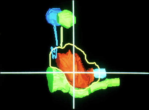 Brain Cancer Wall Art - Photograph - Proton Therapy Cancer Treatment by National Cancer Institute/science Photo Library