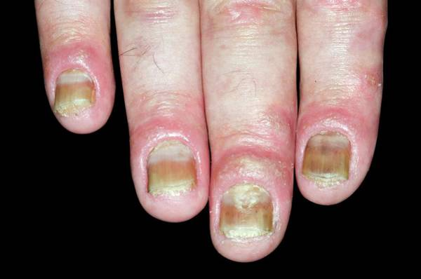 Wall Art - Photograph - Psoriasis Of The Fingernails by Dr P. Marazzi/science Photo Library