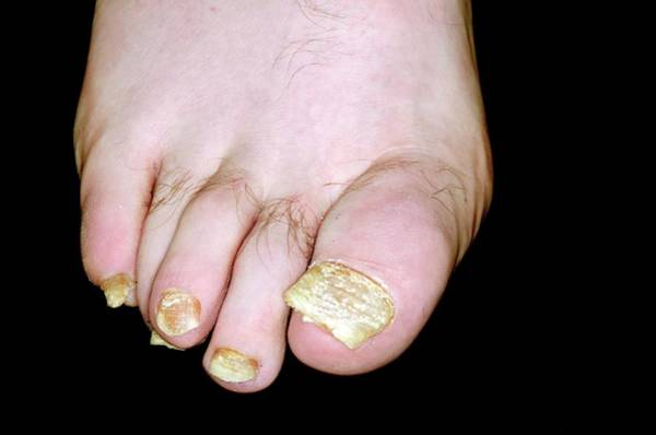 Wall Art - Photograph - Psoriasis Of The Toenails by Dr P. Marazzi/science Photo Library