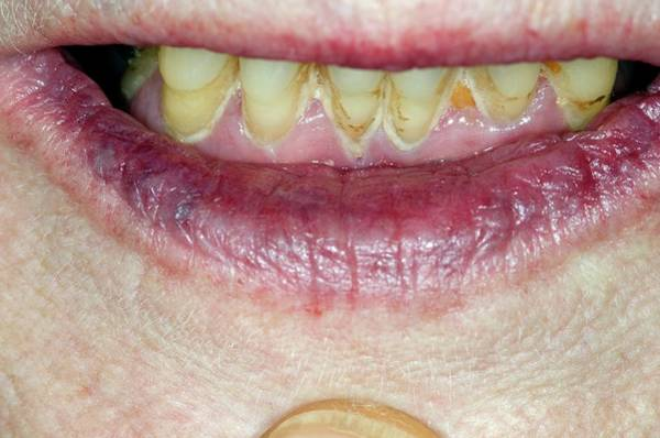 Lips Photograph - Purple Lips Due To Cyanosis by Dr P. Marazzi/science Photo Library