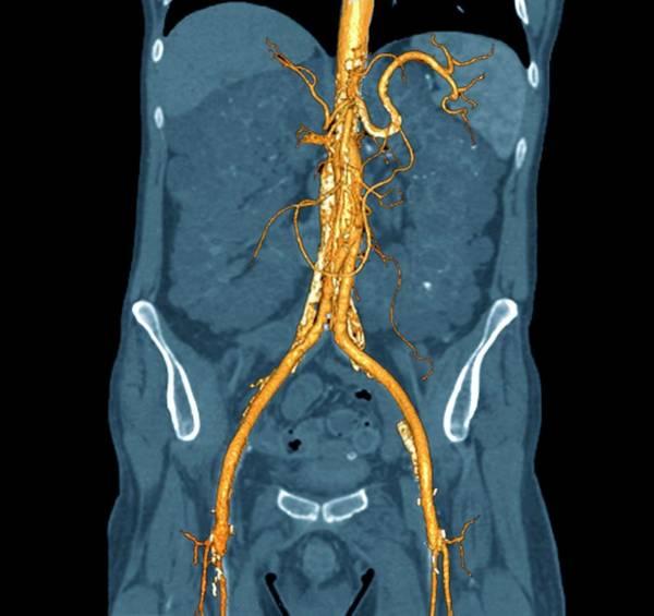 Ormond Photograph - Retroperitoneal Fibrosis by Zephyr