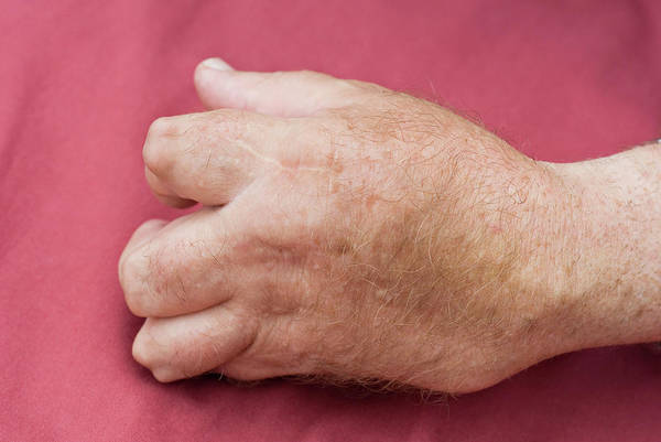 Wall Art - Photograph - Rheumatoid Arthritis by Matt Meadows/science Photo Library