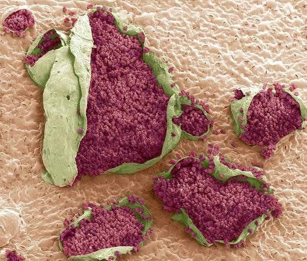 Rust Fungus Photograph - Rust Fungus On A Bellflower Leaf by Steve Gschmeissner