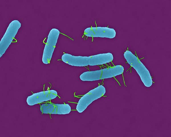 Tif Wall Art - Photograph - Salmonella Typhimurium by Dennis Kunkel Microscopy/science Photo Library