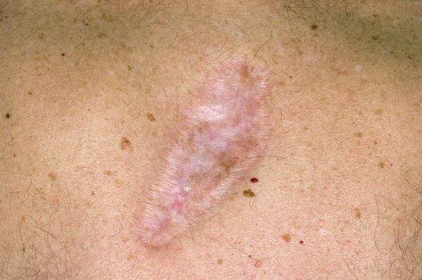 Wall Art - Photograph - Scar On The Skin After Cancer Removal by Dr P. Marazzi/science Photo Library