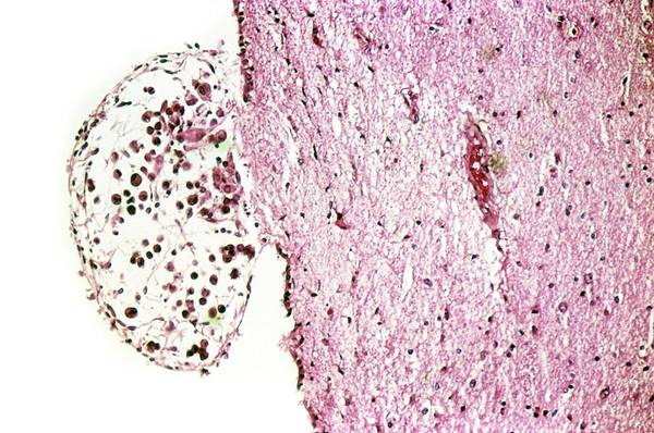 Neoplasm Photograph - Secondary Brain Cancer by Cnri