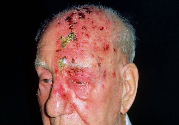 Shingles Photograph - Shingles Attack On Head Of Elderly Male by Dr P. Marazzi/science Photo Library