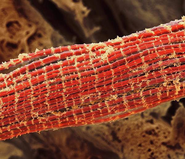 Unit Photograph - Skeletal Muscle Fibres by Steve Gschmeissner
