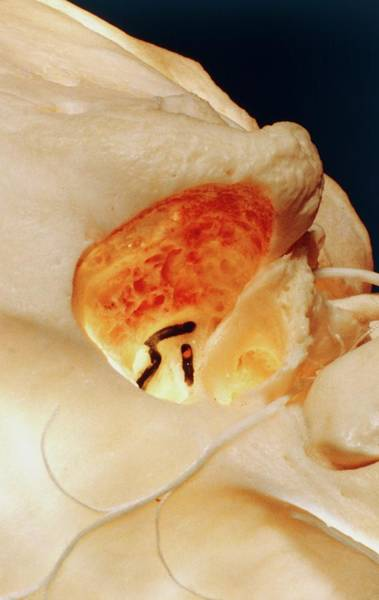 Temporal Bone Wall Art - Photograph - Skull Ear Cavity by Cnri/science Photo Library