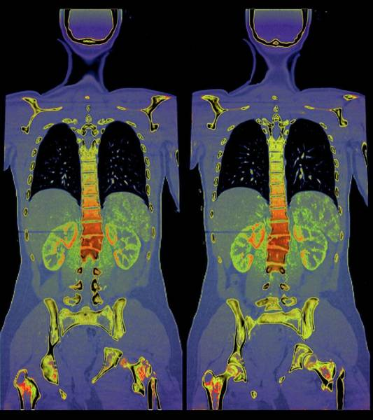 Wall Art - Photograph - Spinal And Pelvic Fractures by Zephyr/science Photo Library