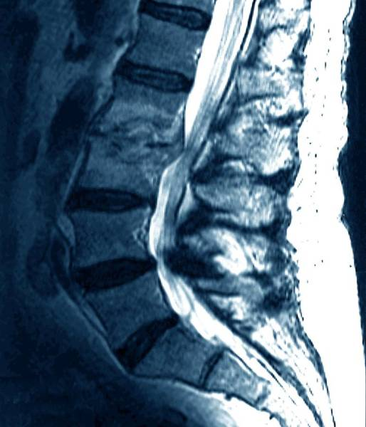 Medical Imaging Photograph - Spondylitis Of Spine by Zephyr/science Photo Library