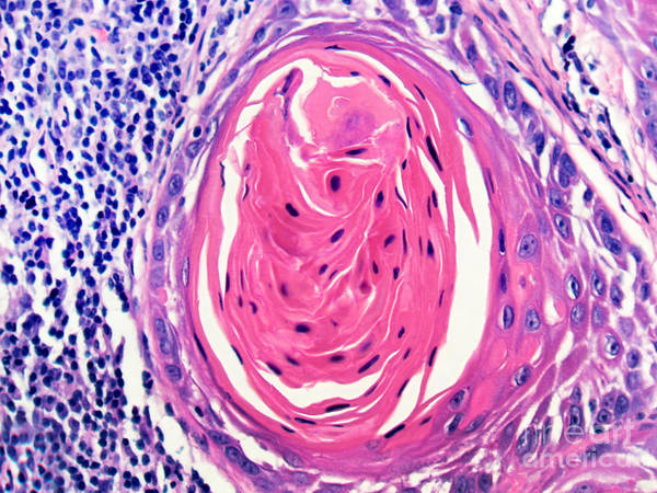 Photograph - Squamous Cell Carcinoma, Keratin Pearl by Garry DeLong