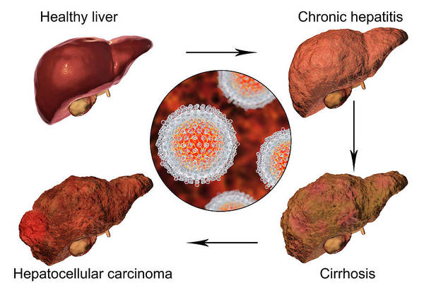 3d Visualization Photograph - Stages Of Liver Disease In Hepatitis C by Kateryna Kon/science Photo Library