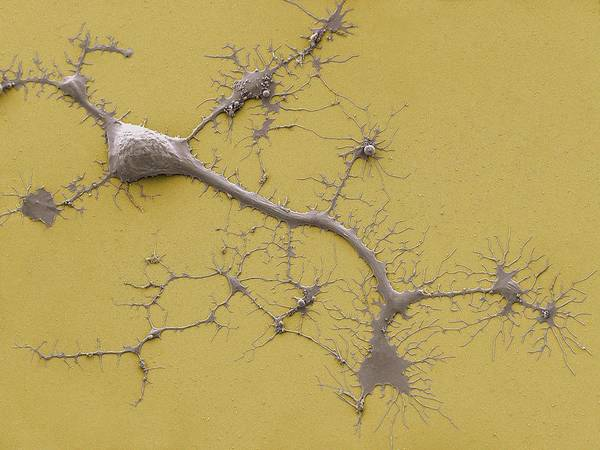 Axon Wall Art - Photograph - Stem Cell-derived Neuron by Thomas Deerinck, Ncmir/science Photo Library