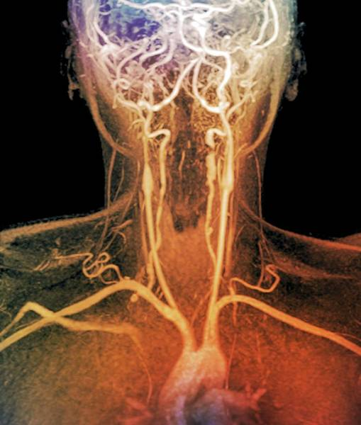 Resonance Wall Art - Photograph - Stenoses In Neck Arteries by Zephyr/science Photo Library