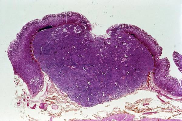 Neoplasm Photograph - Stomach Cancer by Cnri