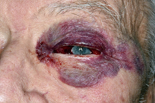 Wall Art - Photograph - Subconjunctival Haemorrhage After Fall by Dr P. Marazzi/science Photo Library