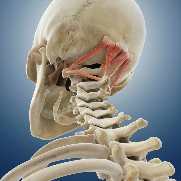 Occipital Bone Photograph - Suboccipital Muscles by Springer Medizin/science Photo Library