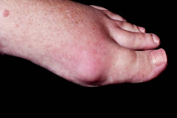 65 Photograph - Swollen Foot In Gout by Dr P. Marazzi/science Photo Library