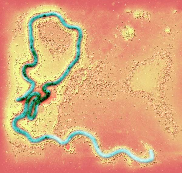 Wall Art - Photograph - Syphilis Bacterium by Ami Images/science Photo Library